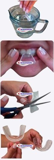 Clareamento 35 Luxo Peroxido De Carbamida 35