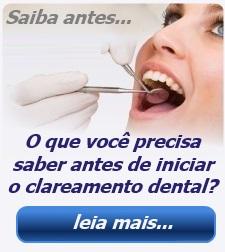 Escolha O Melhor Kit Para Clareamento Dental